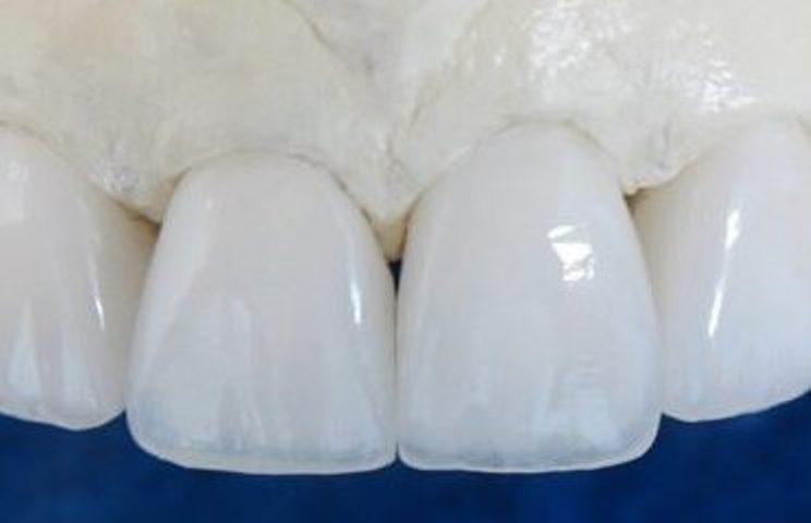 Электрокорунд для зубных коронок